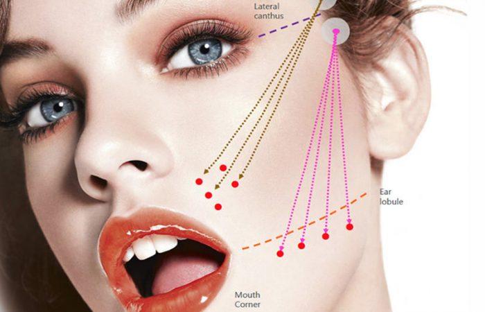 pdo-derma-thread-face-lift530-e1500480556179