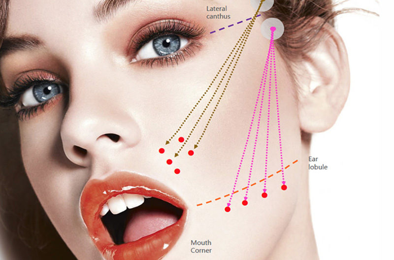 Introducing Non Surgical Face Neck And Body Lifting Treatment