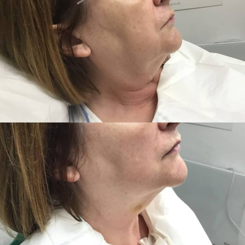 Mesotherapy - RRS Injectables