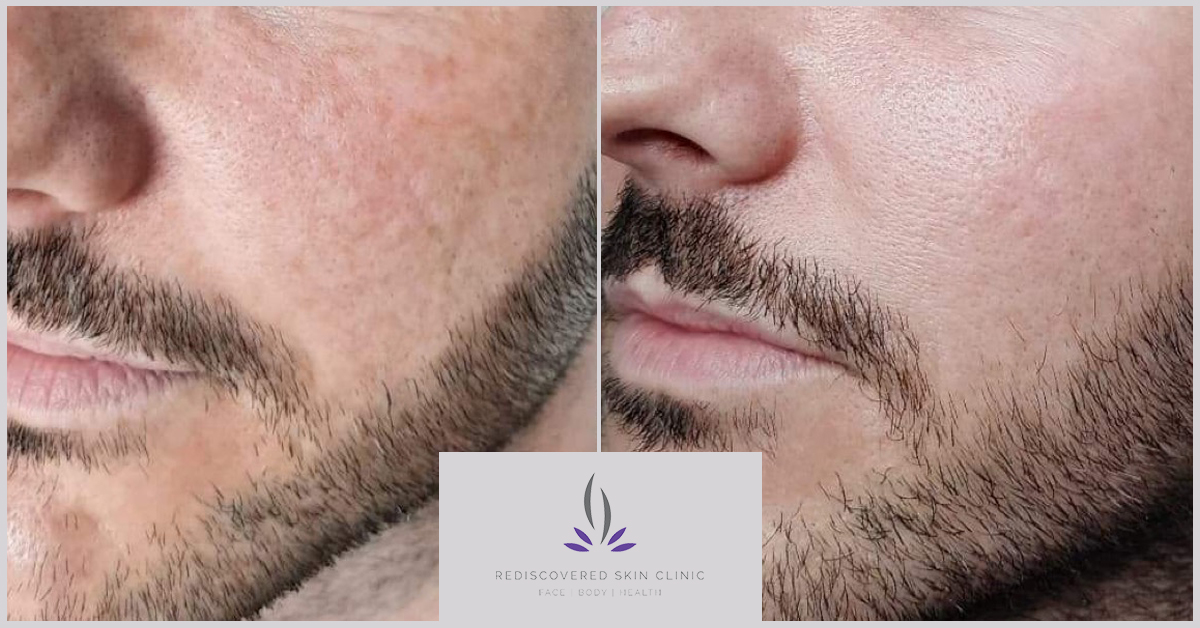 Showing before and after on laser for pigmentation