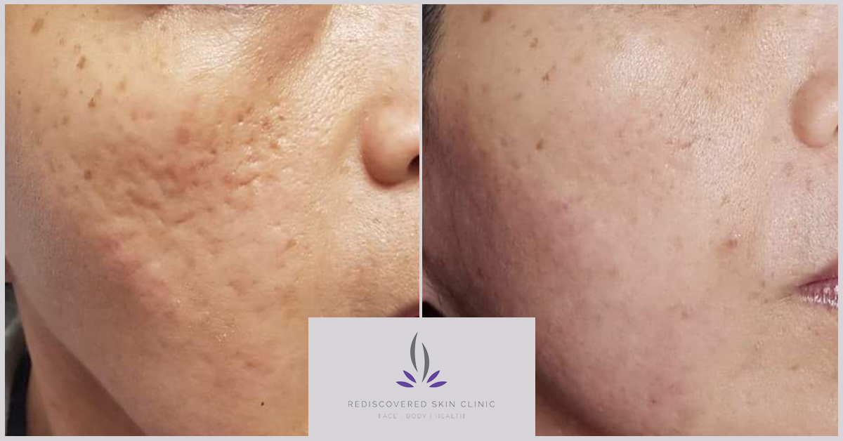 Showing before and after of fractional laser on acne scarring