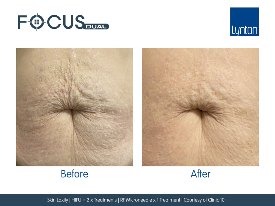 Before and After RF Microneedling on stomach