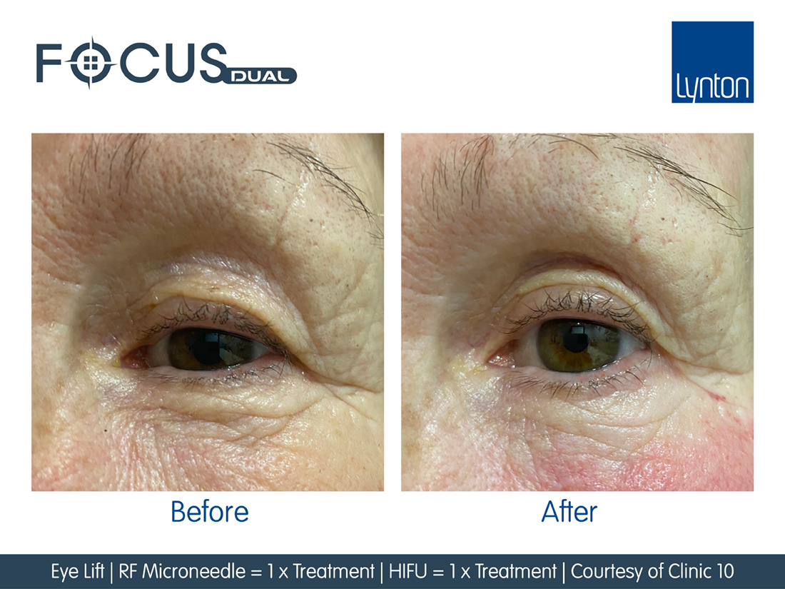Before and after RF Microneedling on eyes