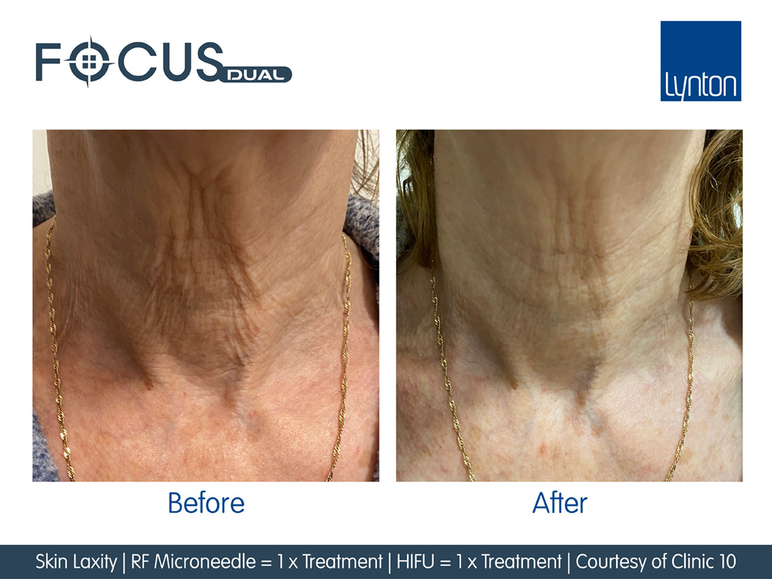Before and After RF Microneedling on neck
