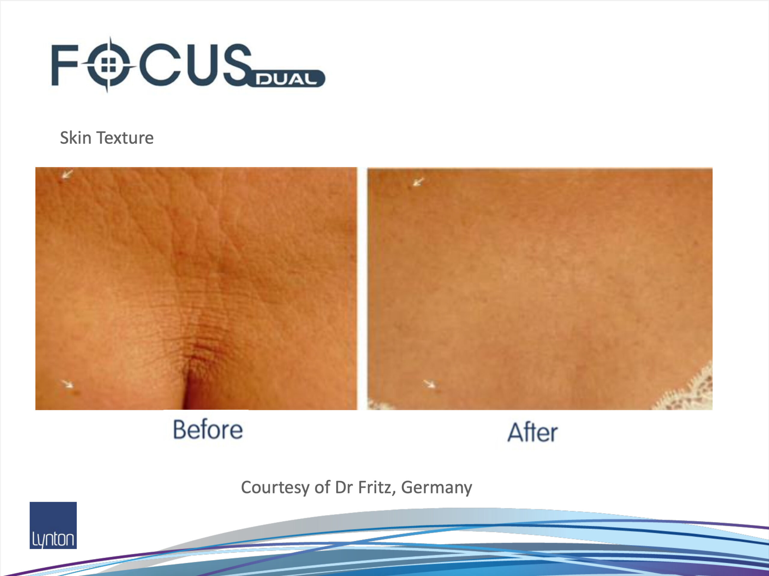 Before and After RF Microneedling on chest