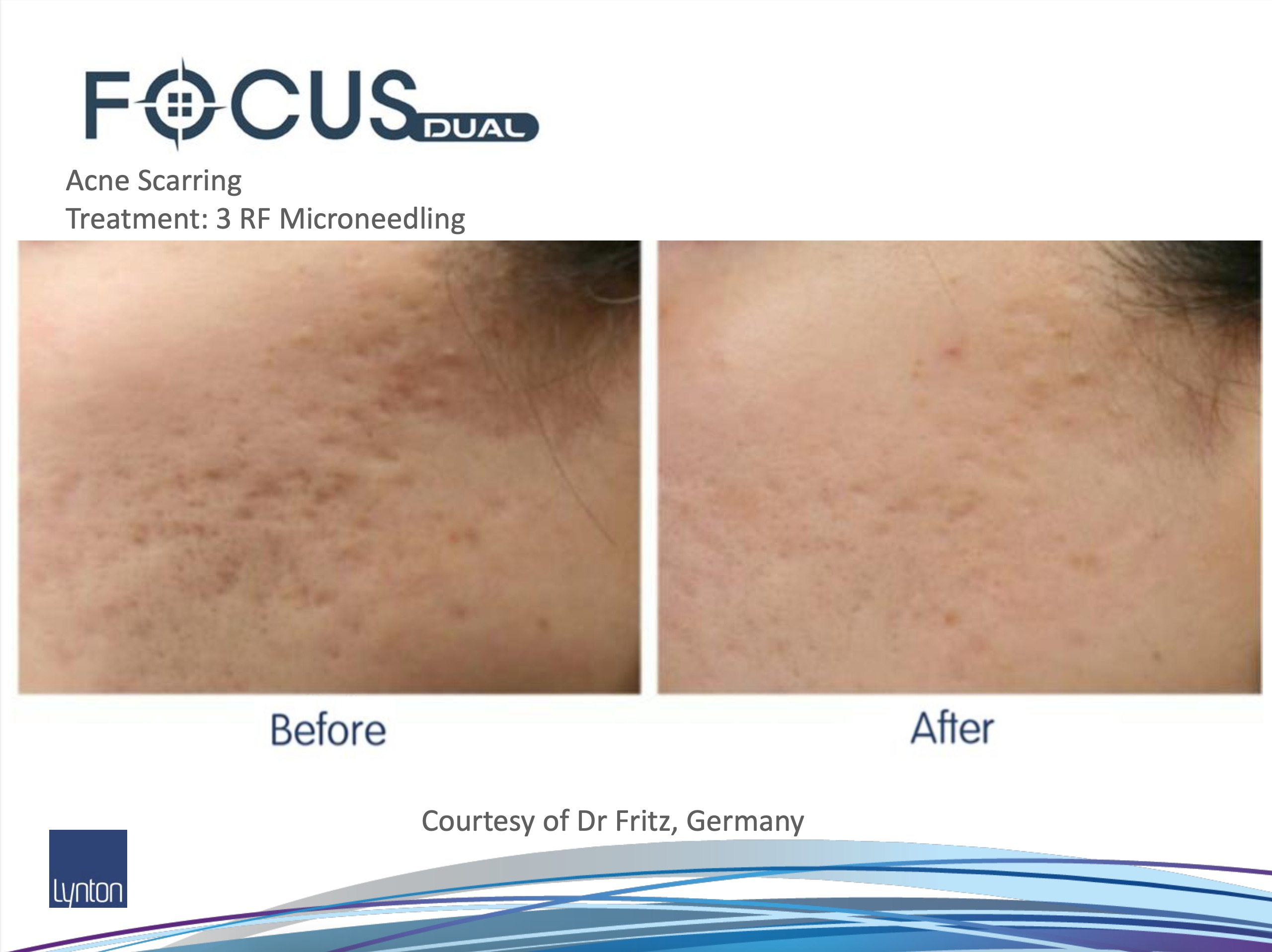 Before and After RF Microneedling on acne scarring