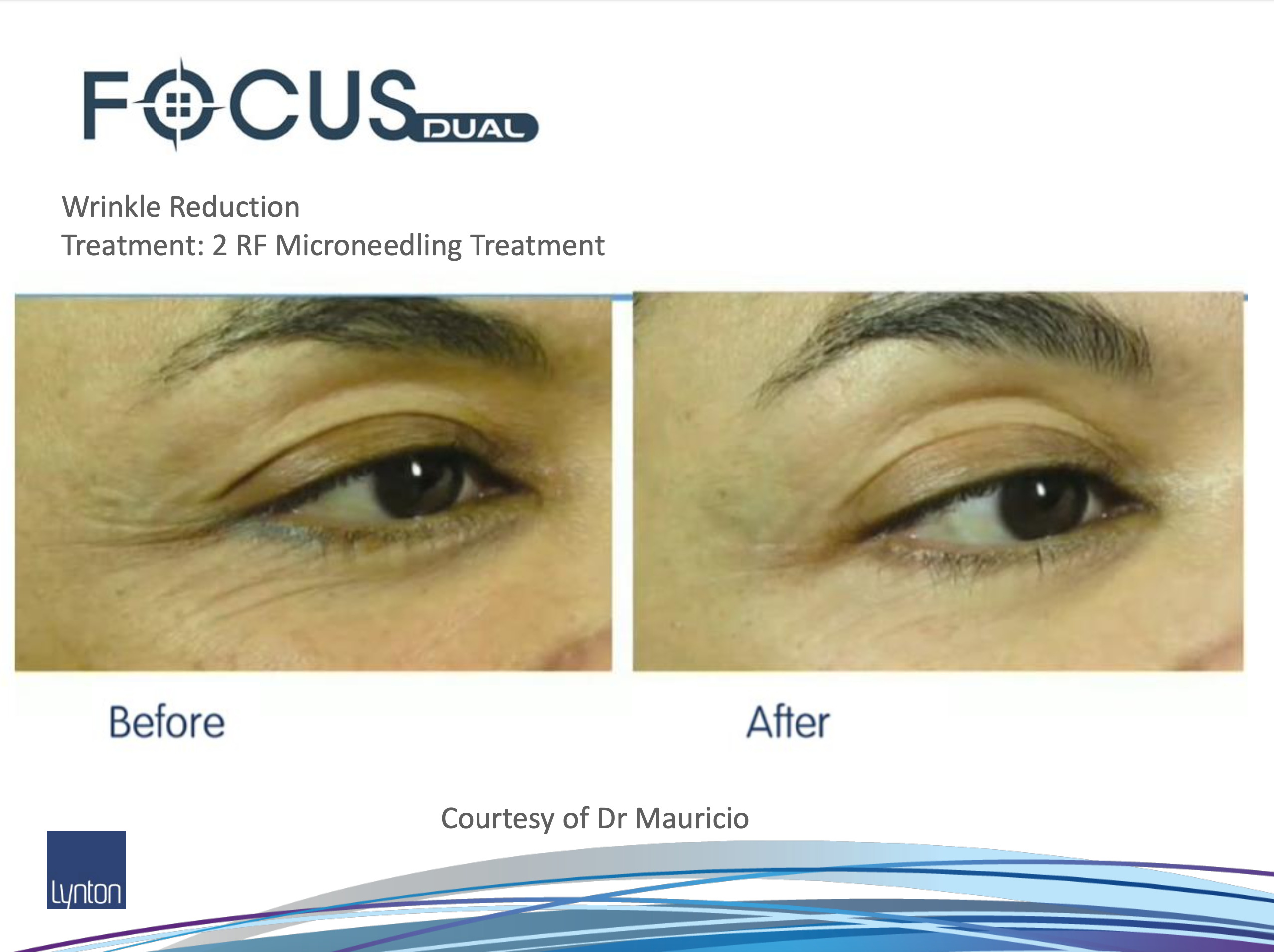 Before and After RF Microneedling on eye lines